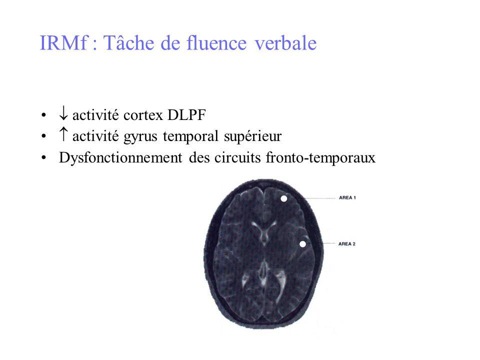 IRMf : Tâche de fluence verbale activité cortex DLPF activité gyrus temporal supérieur Dysfonctionnement des circuits fronto-temporaux