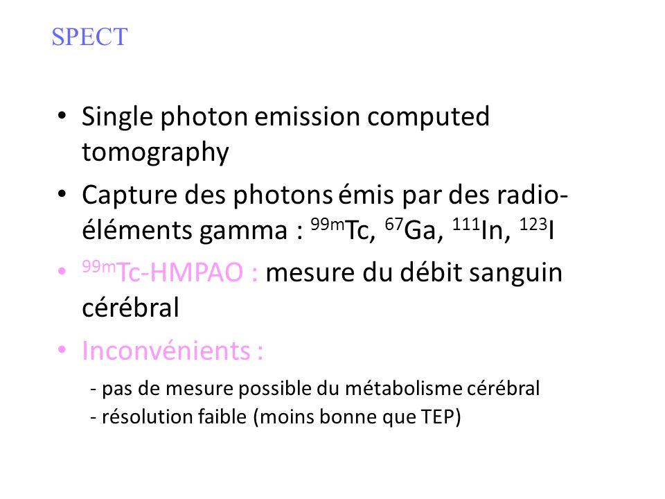 Single photon emission computed tomography Capture des photons émis par des radio- éléments gamma : 99m Tc, 67 Ga, 111 In, 123 I 99m Tc-HMPAO : mesure