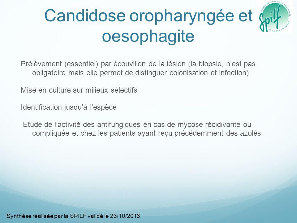 Candidose oropharyngée et oesophagite Prélèvement (essentiel) par écouvillon de la lésion (la biopsie, nest pas obligatoire mais elle permet de distin