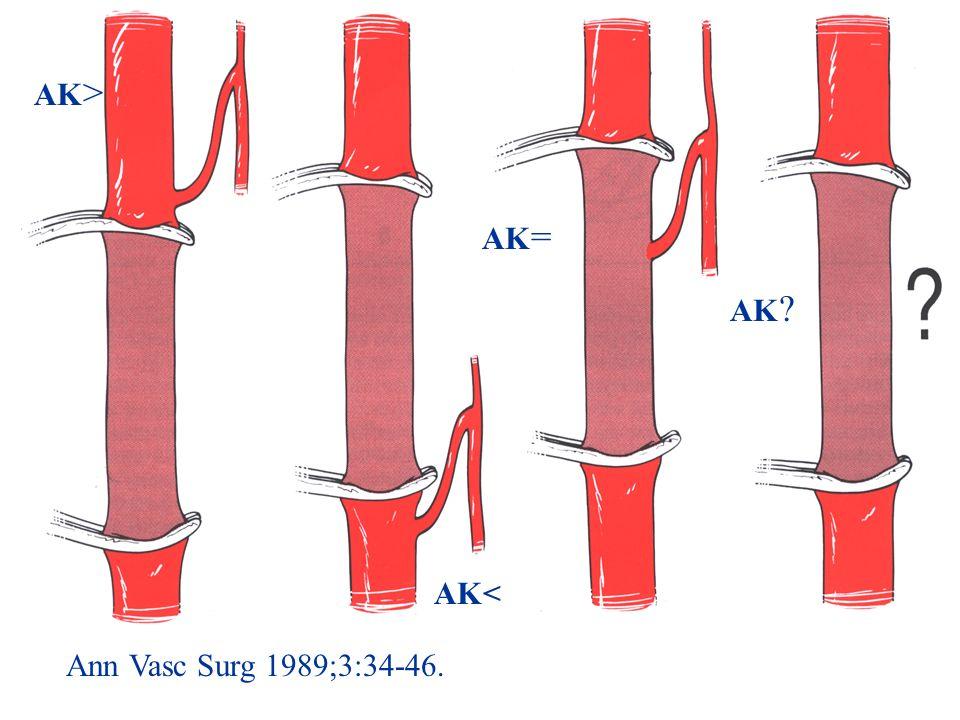 Ann Vasc Surg 1989;3:34-46. AK > AK< AK = AK ?