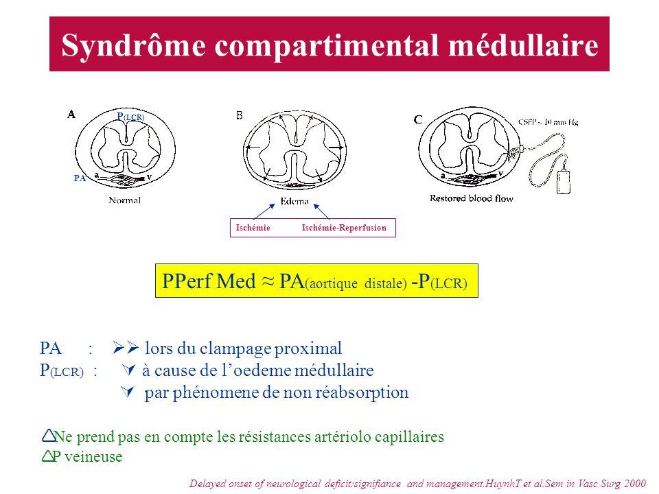 Syndrôme compartimental médullaire PPerf Med PA (aortique distale) -P (LCR) PA : lors du clampage proximal P (LCR) : à cause de loedeme médullaire par