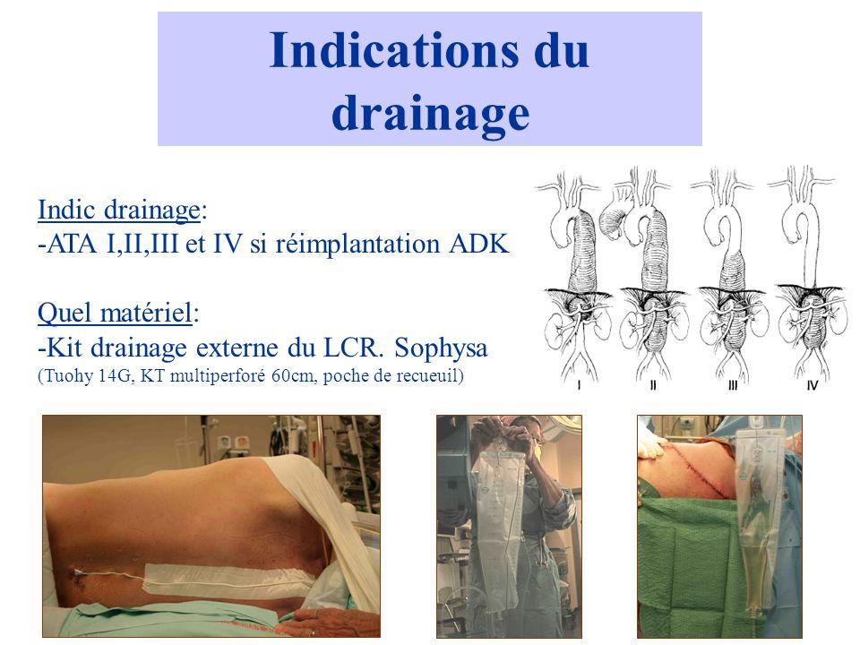 Indications du drainage Indic drainage: -ATA I,II,III et IV si réimplantation ADK Quel matériel: -Kit drainage externe du LCR. Sophysa (Tuohy 14G, KT