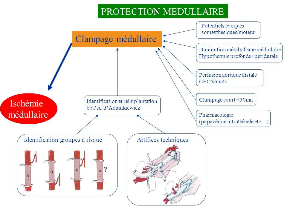 Ischémie médullaire Clampage médullaire PROTECTION MEDULLAIRE Identification groupes à risque Clampage court <30mn Identification et réimplantation de
