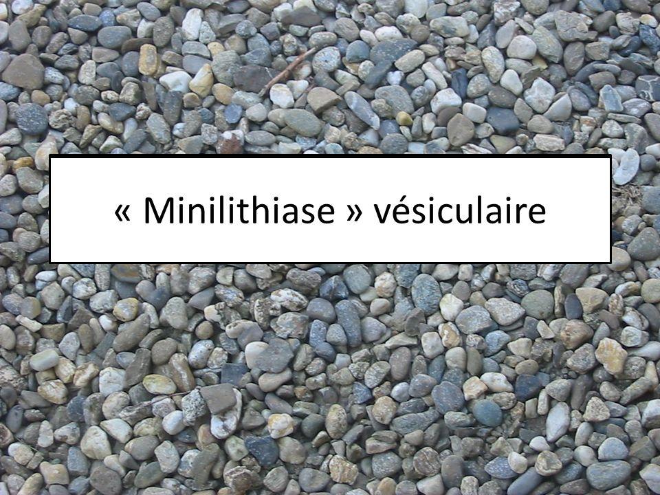 Microlithiase vésiculaire « Minilithiase » vésiculaire