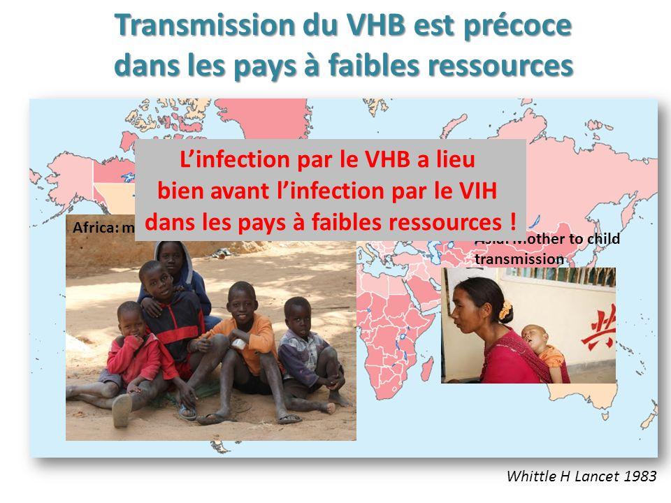 Whittle H Lancet 1983 Transmission du VHB est précoce dans les pays à faibles ressources Africa: mostly child to Child transmission Asia: Mother to child transmission Linfection par le VHB a lieu bien avant linfection par le VIH dans les pays à faibles ressources !