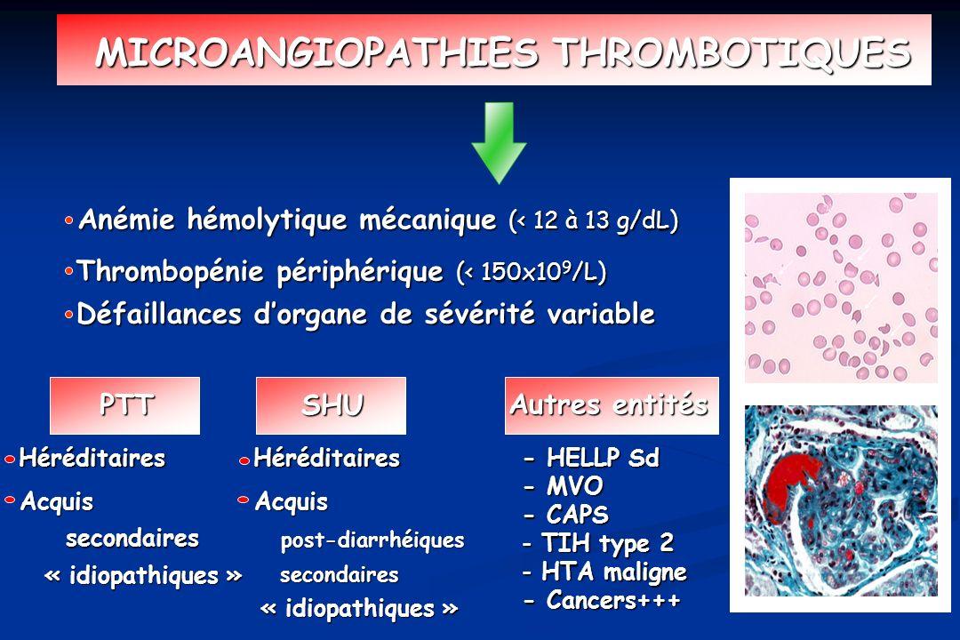 Anémie hémolytique mécanique (< 12 à 13 g/dL) - HELLP Sd - MVO - CAPS - TIH type 2 - HTA maligne - Cancers+++ MICROANGIOPATHIES THROMBOTIQUES Autres e