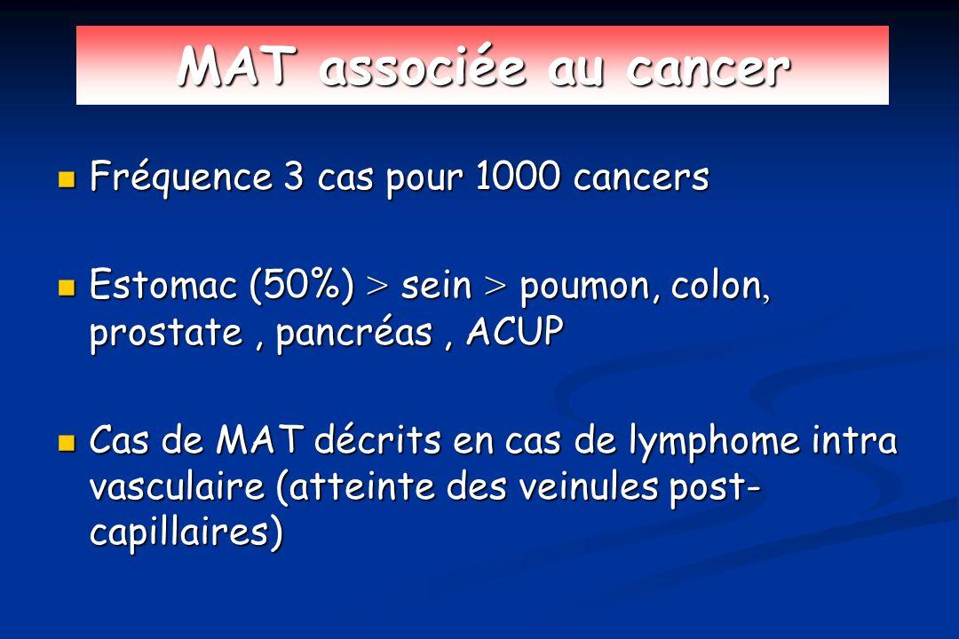 MAT associée au cancer Fréquence 3 cas pour 1000 cancers Fréquence 3 cas pour 1000 cancers Estomac (50%) > sein > poumon, colon, prostate, pancréas, A