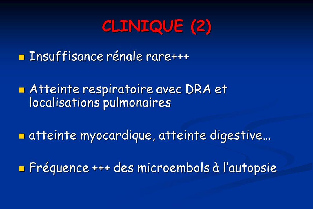 CLINIQUE (2) Insuffisance rénale rare+++ Insuffisance rénale rare+++ Atteinte respiratoire avec DRA et localisations pulmonaires Atteinte respiratoire