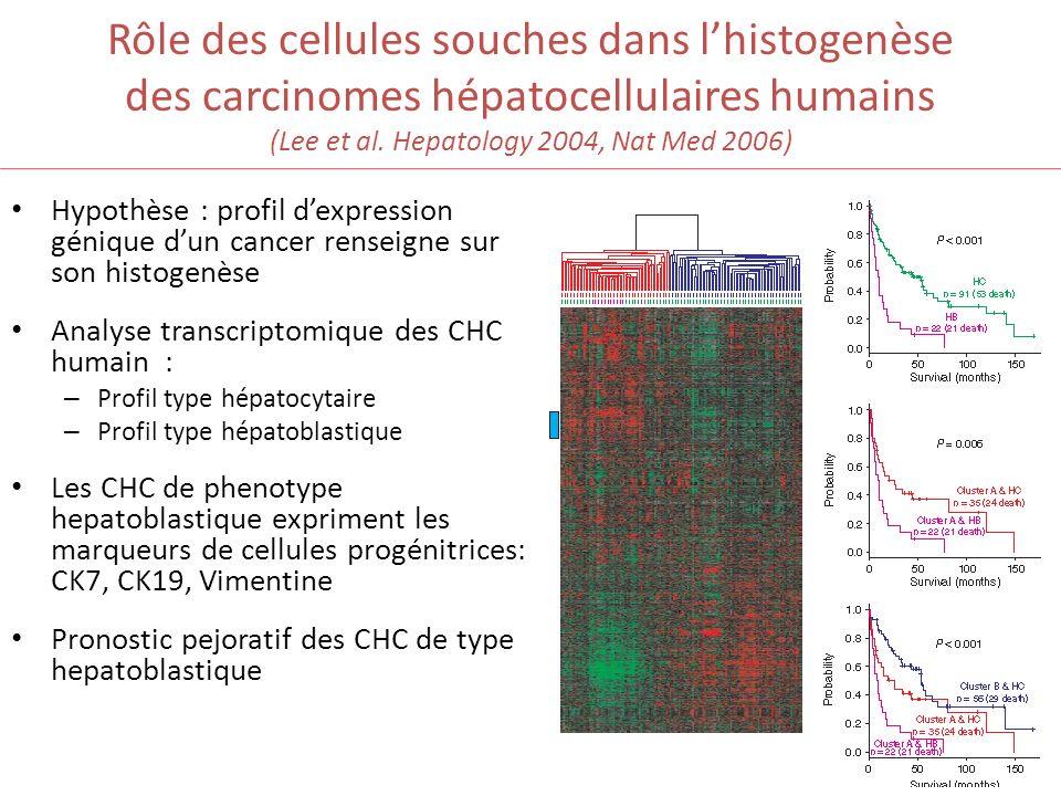 Rôle des cellules souches dans lhistogenèse des carcinomes hépatocellulaires humains (Lee et al. Hepatology 2004, Nat Med 2006) Hypothèse : profil dex
