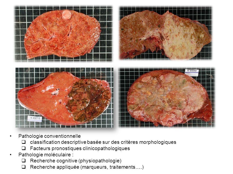 Pathologie conventionnelle classification descriptive basée sur des critères morphologiques Facteurs pronostiques clinicopathologiques Pathologie molé