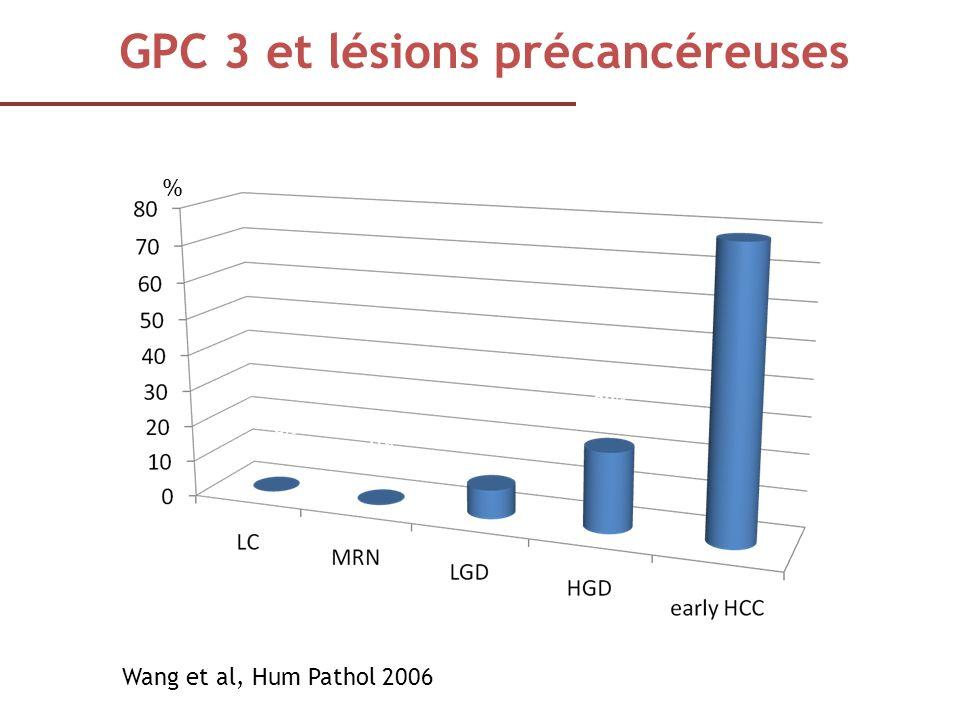 Wang et al, Hum Pathol 2006 GPC 3 et lésions précancéreuses % of GPC3 + immunostaining 0% 3% 22% 88% %