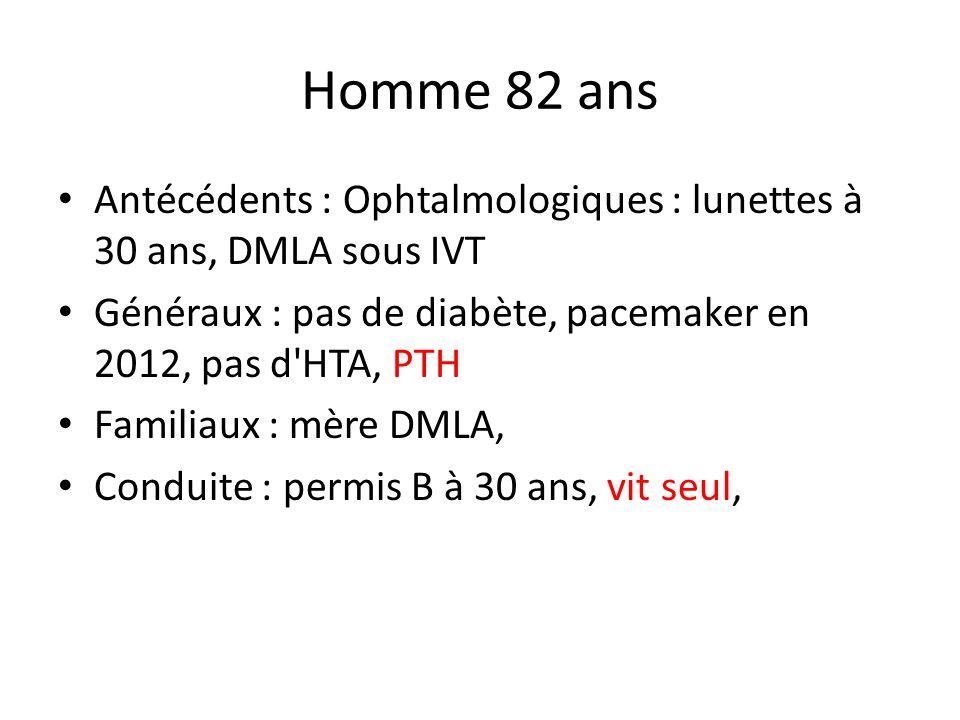 Homme 82 ans Antécédents : Ophtalmologiques : lunettes à 30 ans, DMLA sous IVT Généraux : pas de diabète, pacemaker en 2012, pas d'HTA, PTH Familiaux