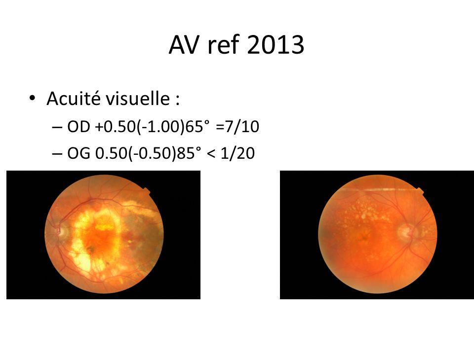AV ref 2013 Acuité visuelle : – OD +0.50(-1.00)65° =7/10 – OG 0.50(-0.50)85° < 1/20