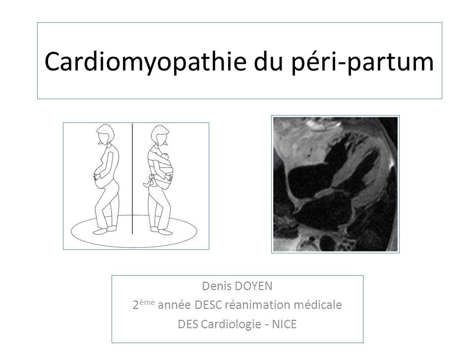 Cardiomyopathie du péri-partum Denis DOYEN 2 ème année DESC réanimation médicale DES Cardiologie - NICE