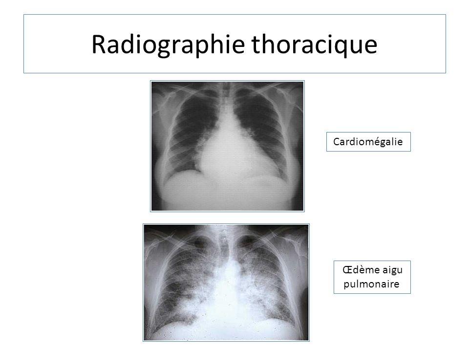 Radiographie thoracique Cardiomégalie Œdème aigu pulmonaire