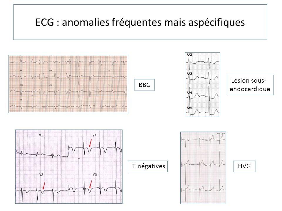 ECG : anomalies fréquentes mais aspécifiques BBG Lésion sous- endocardique T négatives HVG