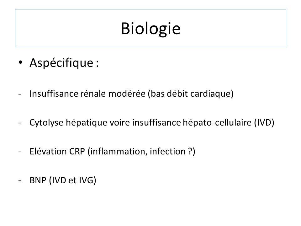Biologie Aspécifique : -Insuffisance rénale modérée (bas débit cardiaque) -Cytolyse hépatique voire insuffisance hépato-cellulaire (IVD) -Elévation CR