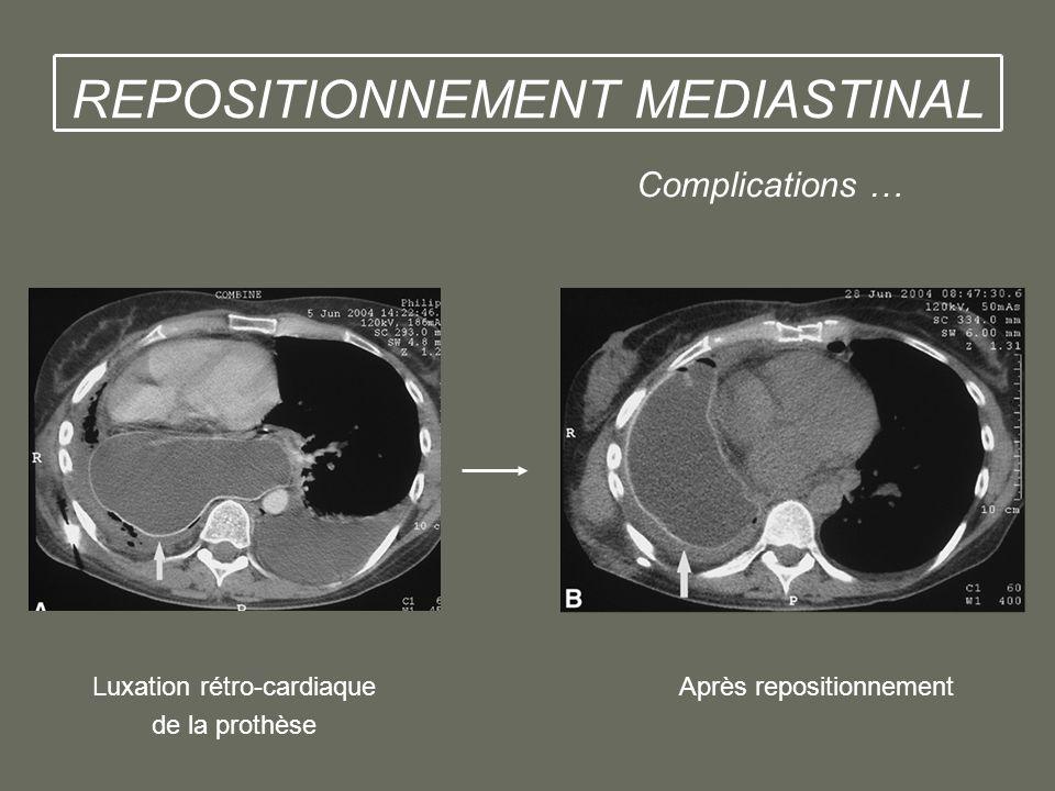 Complications … Luxation rétro-cardiaque Après repositionnement de la prothèse