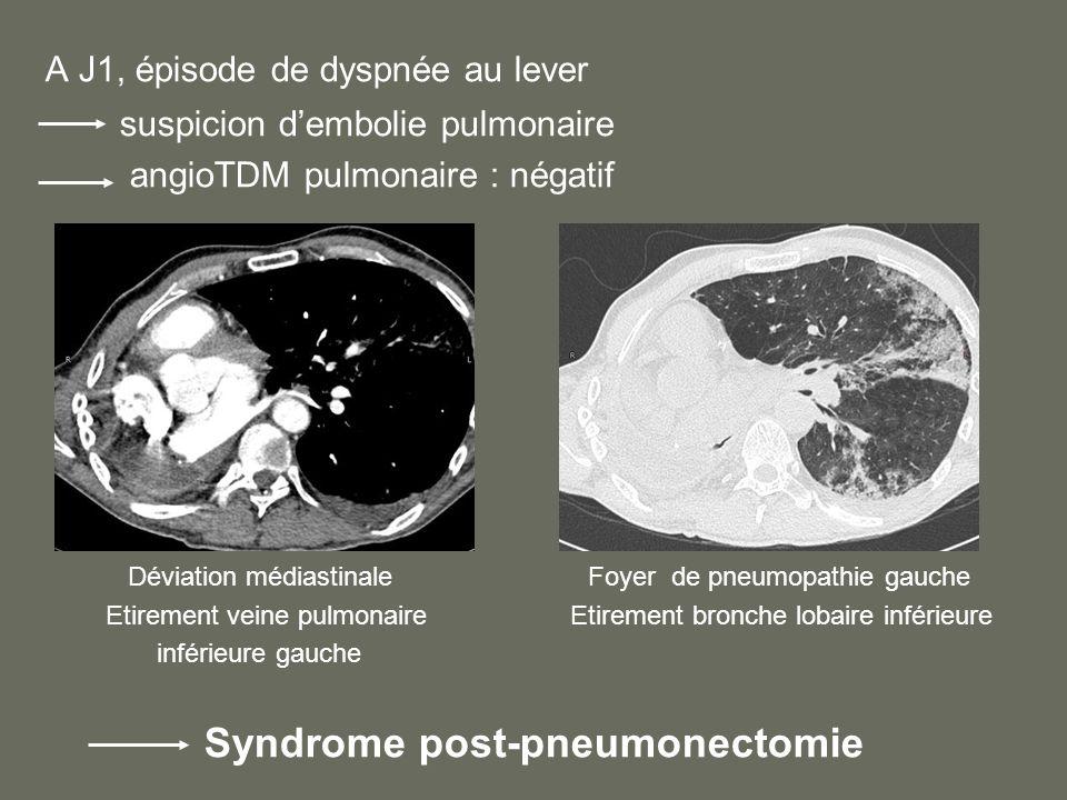 A J1, épisode de dyspnée au lever suspicion dembolie pulmonaire angioTDM pulmonaire : négatif Déviation médiastinale Foyer de pneumopathie gauche Etirement veine pulmonaire Etirement bronche lobaire inférieure inférieure gauche Syndrome post-pneumonectomie