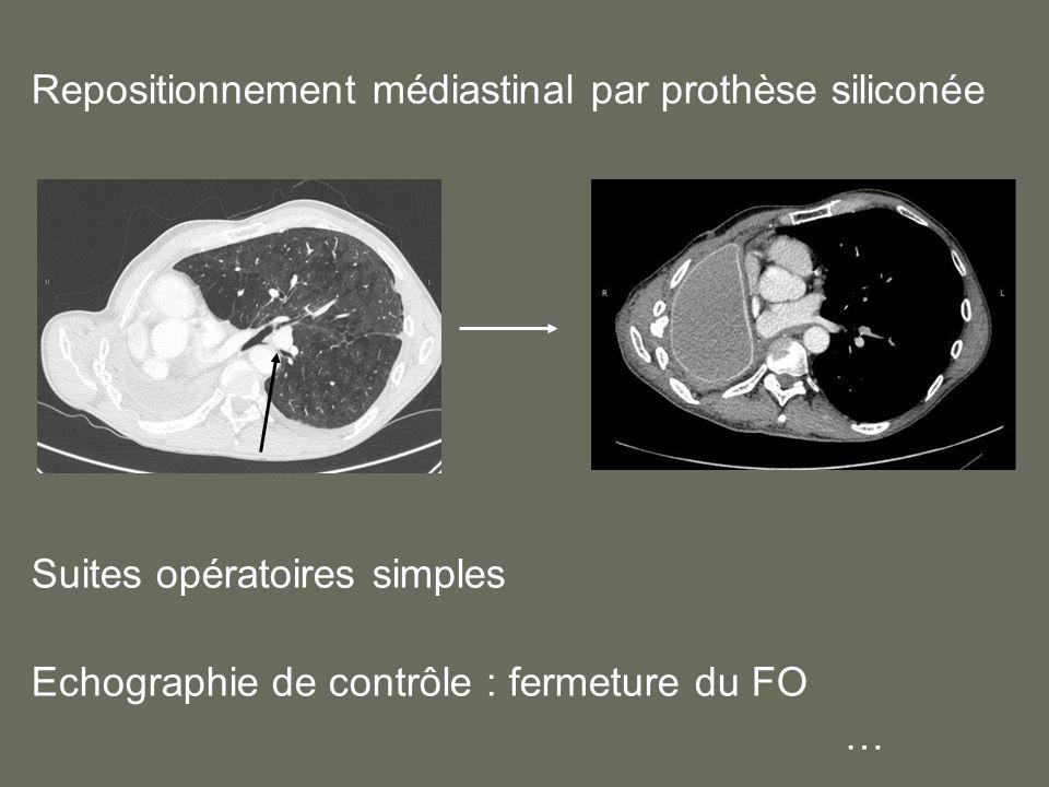 Repositionnement médiastinal par prothèse siliconée Suites opératoires simples Echographie de contrôle : fermeture du FO …