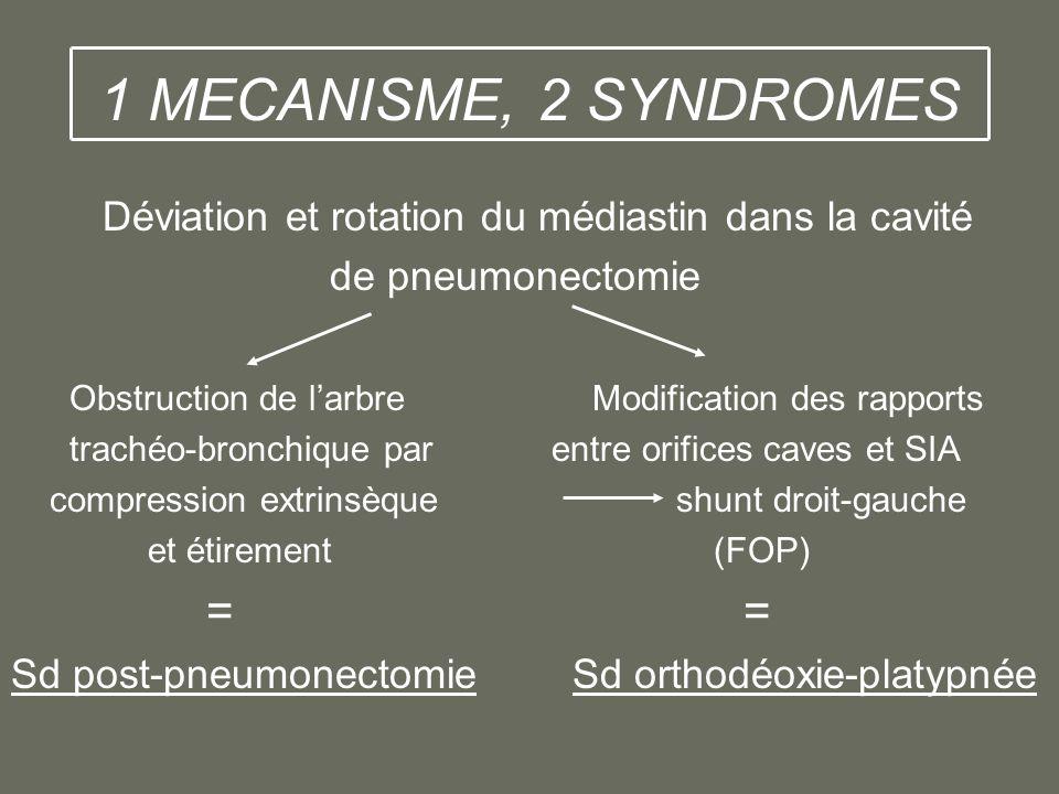1 MECANISME, 2 SYNDROMES Déviation et rotation du médiastin dans la cavité de pneumonectomie Obstruction de larbre Modification des rapports trachéo-b