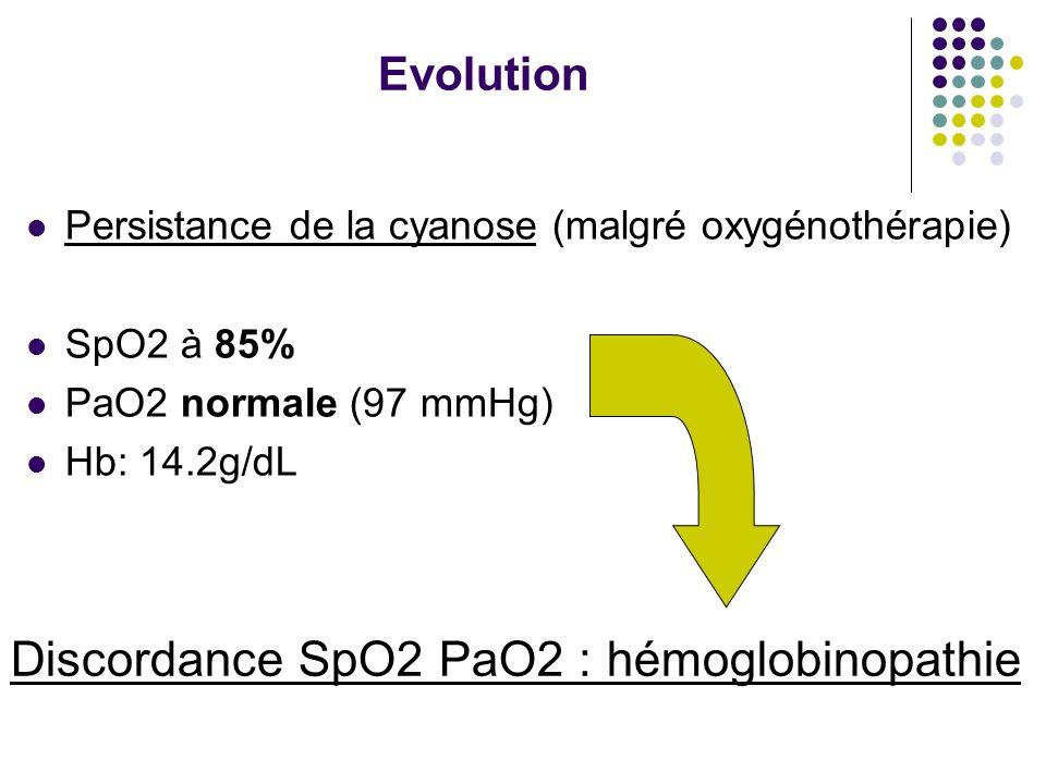 Evolution Persistance de la cyanose (malgré oxygénothérapie) SpO2 à 85% PaO2 normale (97 mmHg) Hb: 14.2g/dL Discordance SpO2 PaO2 : hémoglobinopathie