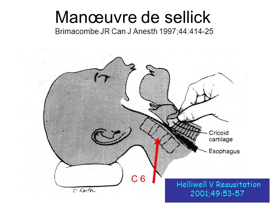 Manœuvre de sellick Brimacombe JR Can J Anesth 1997;44:414-25 Helliwell V Resusitation 2001;49:53-57 C 6