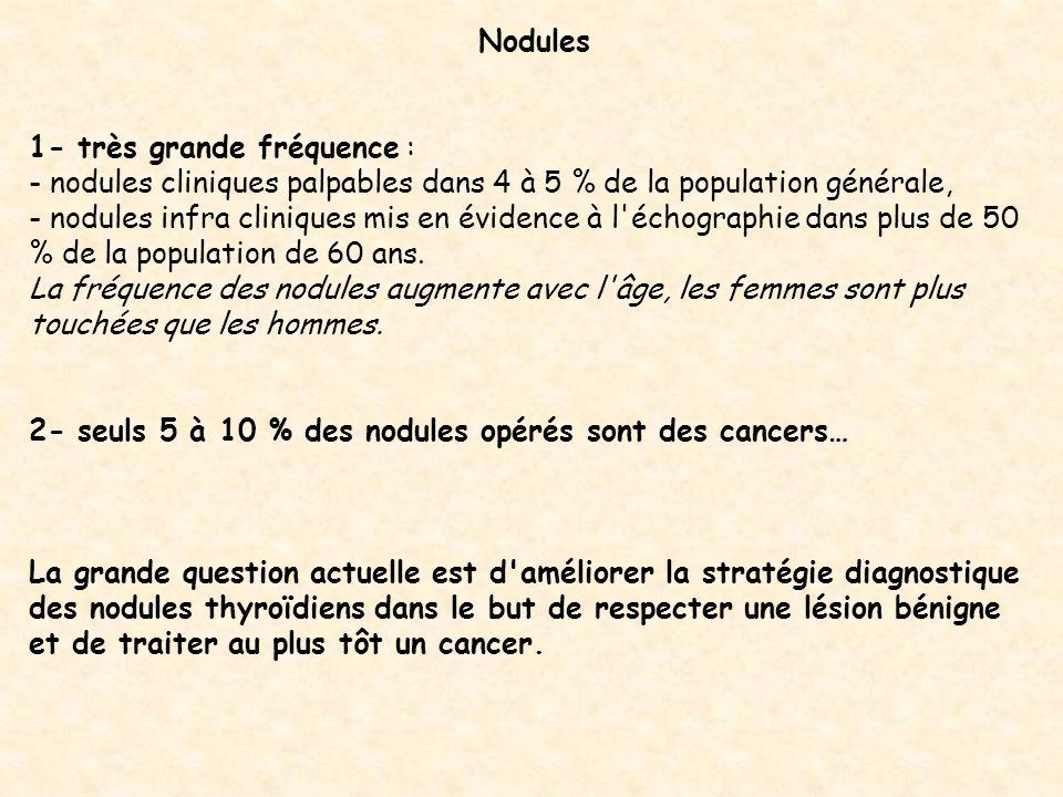 Nodules 1- très grande fréquence : - nodules cliniques palpables dans 4 à 5 % de la population générale, - nodules infra cliniques mis en évidence à l