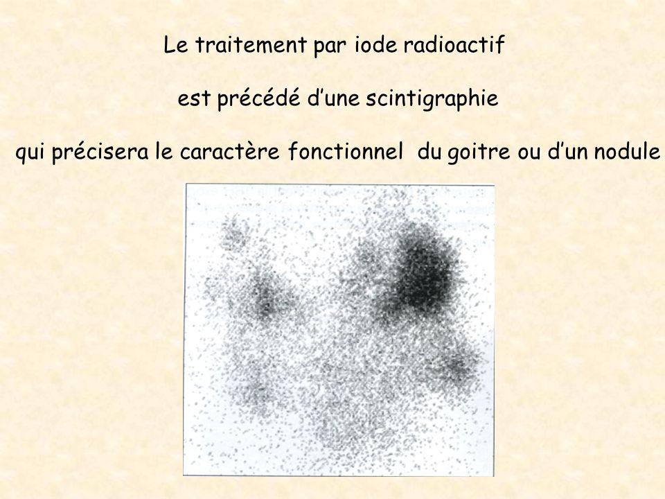 Le traitement par iode radioactif est précédé dune scintigraphie qui précisera le caractère fonctionnel du goitre ou dun nodule