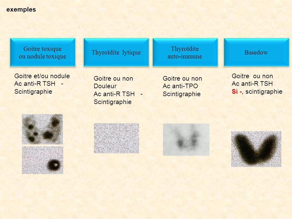 exemples Basedow Goitre ou non Ac anti-R TSH Si -, scintigraphie Goitre toxique ou nodule toxique Goitre toxique ou nodule toxique Goitre et/ou nodule