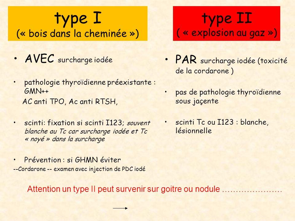 type II ( « explosion au gaz ») PAR surcharge iodée (toxicité de la cordarone ) pas de pathologie thyroïdienne sous jaçente scinti Tc ou I123 : blanch