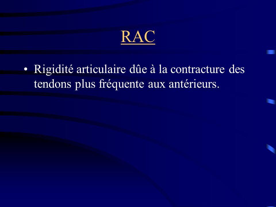 RAC Rigidité articulaire dûe à la contracture des tendons plus fréquente aux antérieurs.