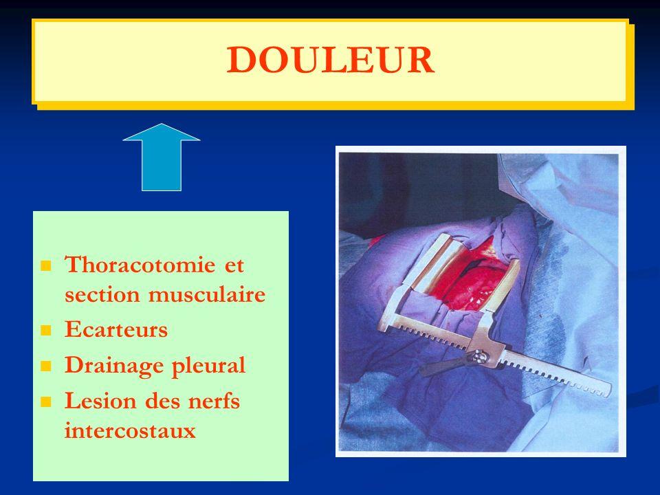 Thoracotomie et section musculaire Ecarteurs Drainage pleural Lesion des nerfs intercostaux DOULEUR