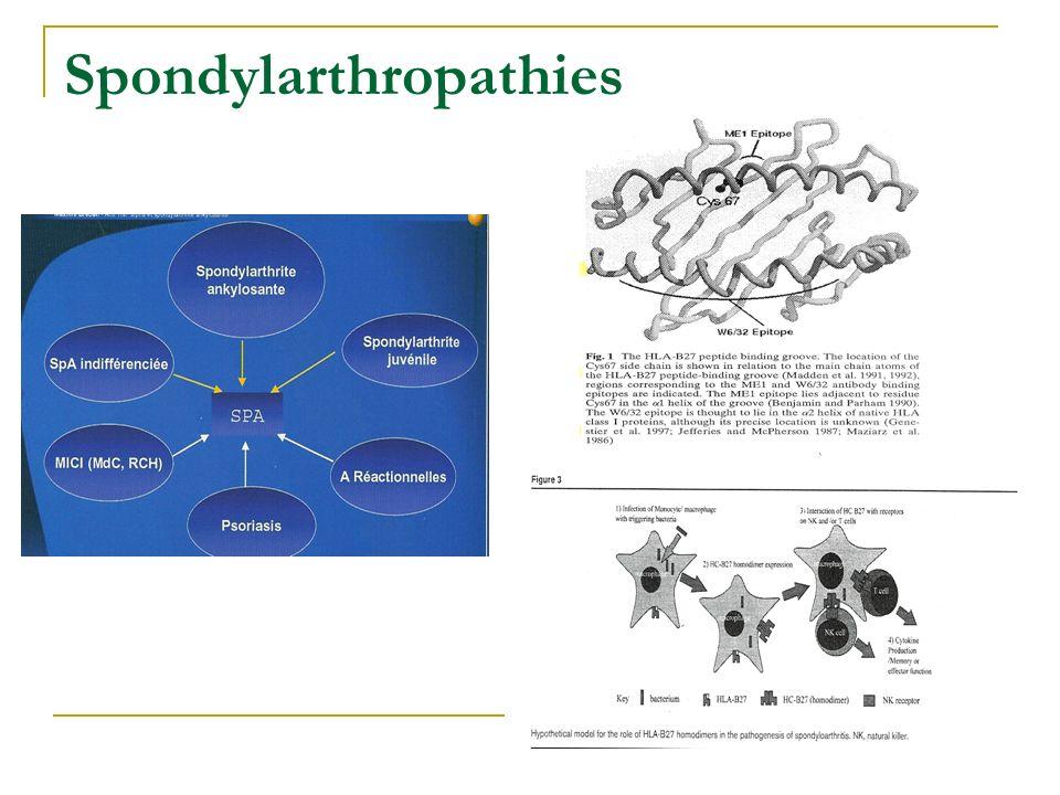 Réponse anti-TNF Polymorphisme promoteur TNF 308 A/G Association génotype 308 G/G et bonne réponse TNF Autres pathologies: SpA ? Mugnier, Arthritis Rh