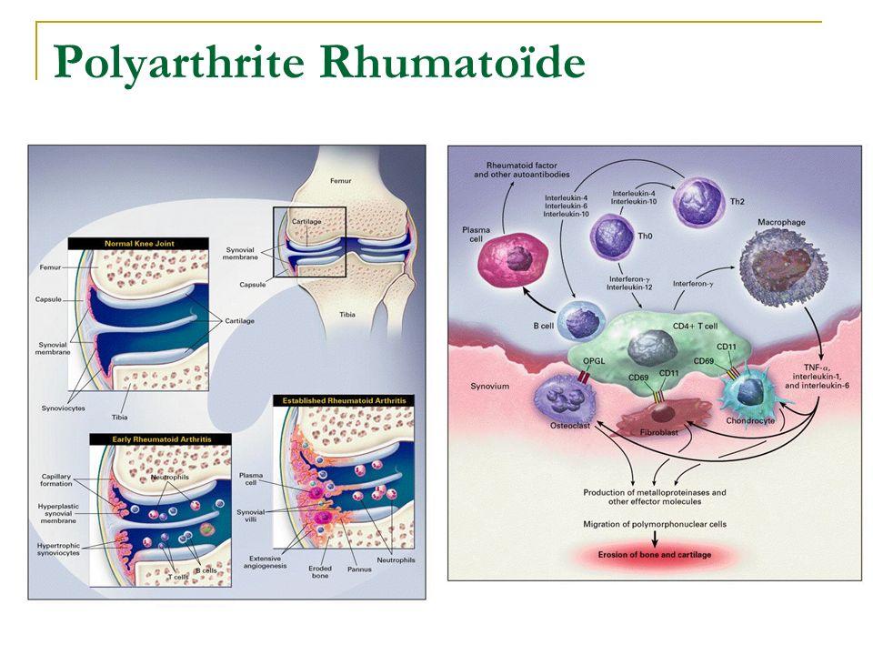 Rhumatismes inflammatoires Facteurs génétiques Marqueurs dévolutivité Modifications Immunité: Auto-Anticorps, Cytokines… Facteurs environnement Facteu