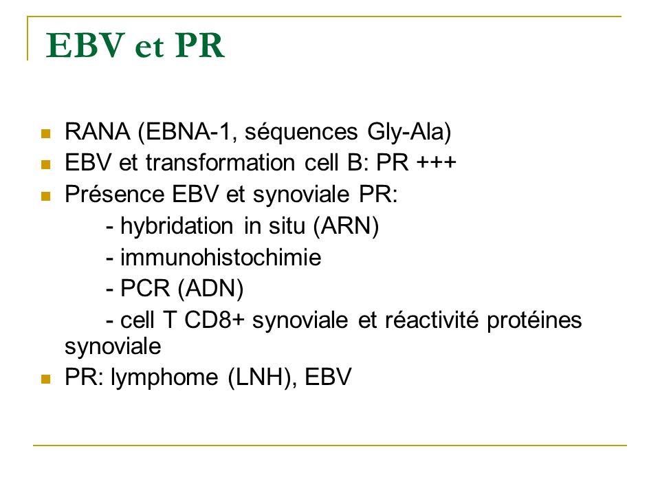 Immunogenetique PR Epitope partagé Association PR- DRB1*0101,*0401, *0404 (J Rheumatol, 1999) Relation sévérité maladie (DRB1*0401-vascularite, DDB) N