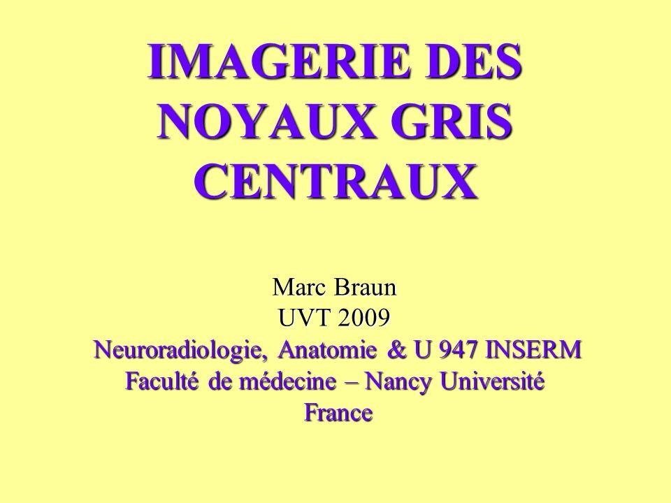 IMAGERIE DES NOYAUX GRIS CENTRAUX Marc Braun UVT 2009 Neuroradiologie, Anatomie & U 947 INSERM Faculté de médecine – Nancy Université France