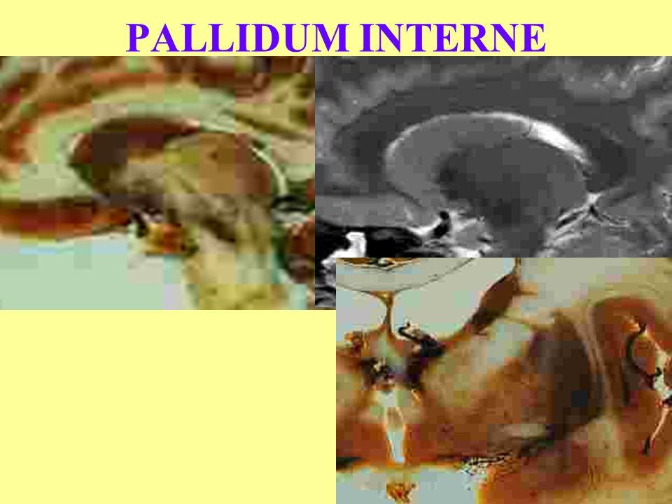 PALLIDUM INTERNE