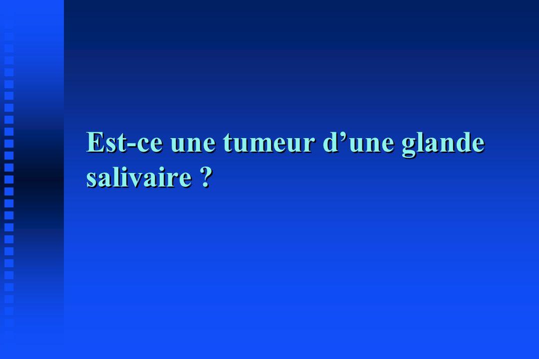 Est-ce une tumeur dune glande salivaire ?