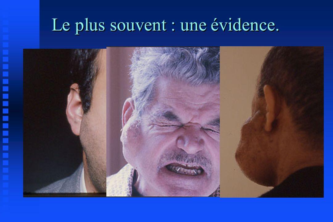 Recommandations actuelles en France.
