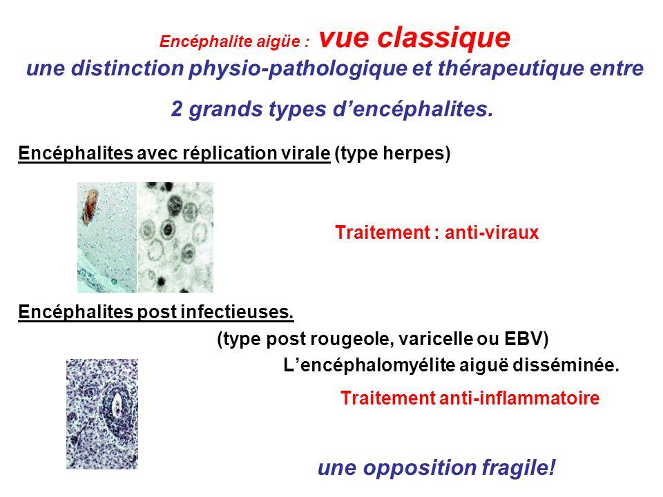 Encéphalites aiguës Un essai de classification pathophysiologique Immunité innée: encéphalomyélite aiguë disséminée (acute disseminated encephalomyelitis = ADEM).