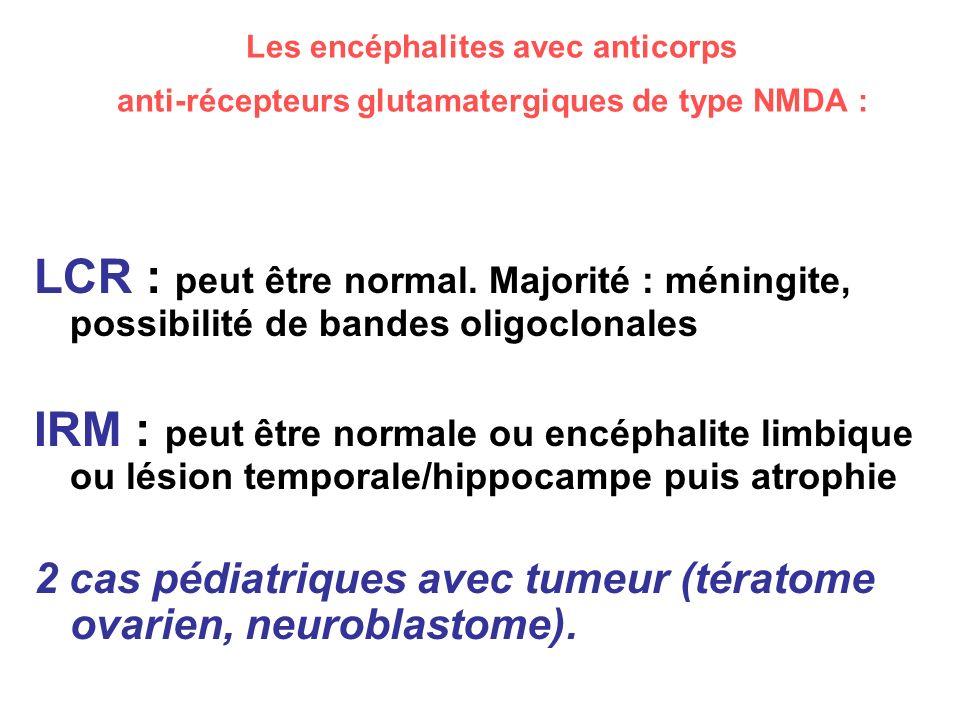 Les encéphalites avec anticorps anti-récepteurs glutamatergiques de type NMDA : LCR : peut être normal. Majorité : méningite, possibilité de bandes ol