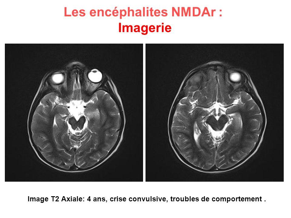 Image T2 Axiale: 4 ans, crise convulsive, troubles de comportement. Les encéphalites NMDAr : Imagerie