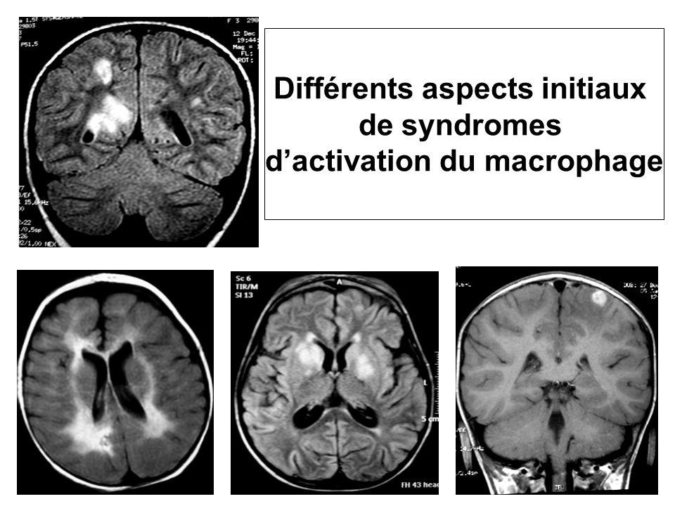 Différents aspects initiaux de syndromes dactivation du macrophage