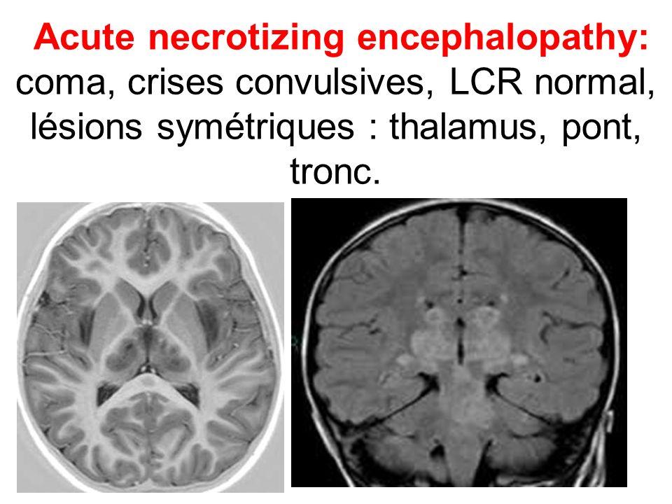 Acute necrotizing encephalopathy: coma, crises convulsives, LCR normal, lésions symétriques : thalamus, pont, tronc.