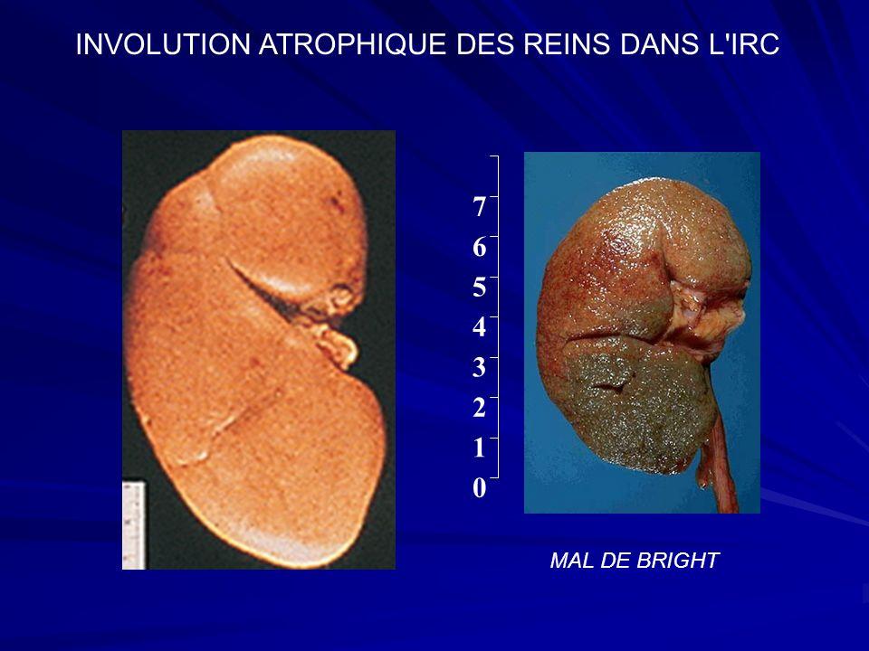 1 2 0 7 6 5 4 3 INVOLUTION ATROPHIQUE DES REINS DANS L'IRC MAL DE BRIGHT