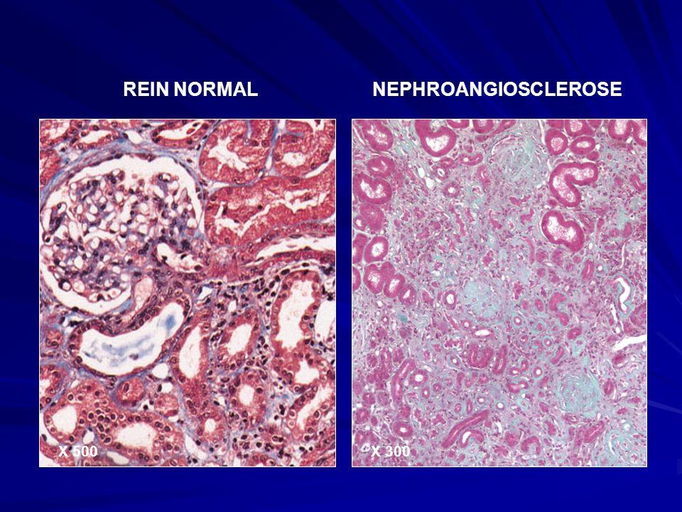 Tout néphron altéré, quelle que soit la cause, sera ± rapidement détruit ; Les néphrons sains compensent les néphrons disparus et s hypertrophient ; Des contraintes hémodynamiques et métaboliques excessives, ainsi qu une inflammation persistante détruisent les néphrons hypertrophiés.