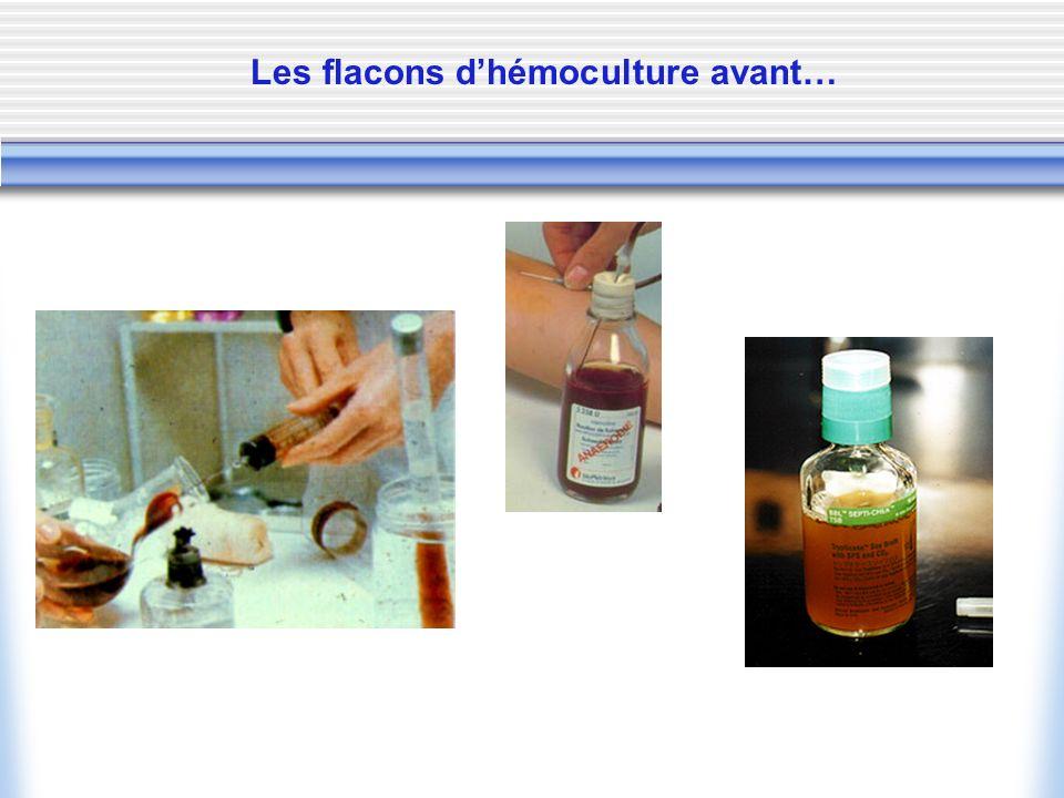 Les flacons dhémoculture avant…