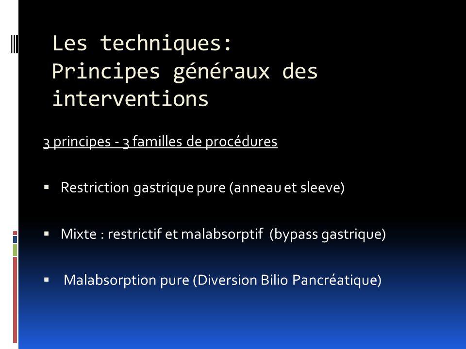 Les techniques: Principes généraux des interventions 3 principes - 3 familles de procédures Restriction gastrique pure (anneau et sleeve) Mixte : rest