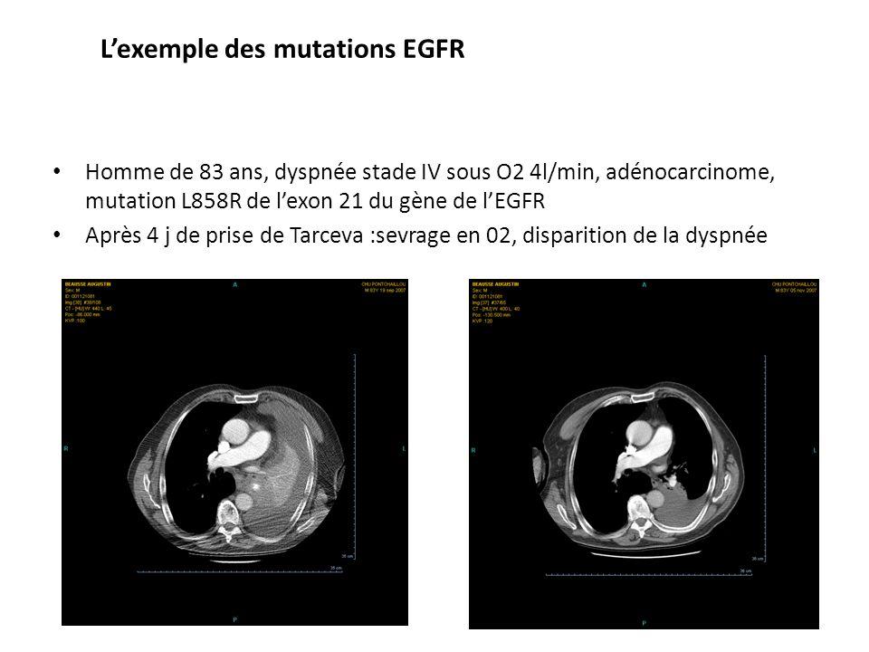 Lexemple des mutations EGFR Homme de 83 ans, dyspnée stade IV sous O2 4l/min, adénocarcinome, mutation L858R de lexon 21 du gène de lEGFR Après 4 j de prise de Tarceva :sevrage en 02, disparition de la dyspnée